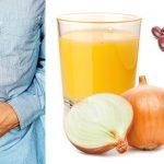 Detta ska du undvika – om du drabbats av IBS